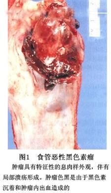 肿瘤表面的食管鳞状上皮多属正常;瘤组织的结构呈