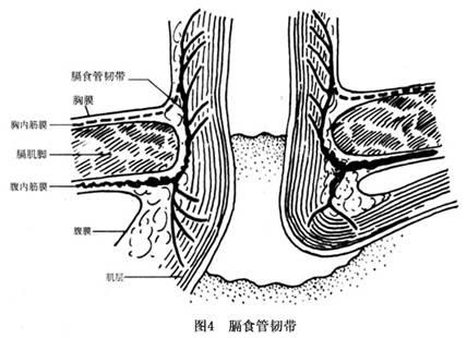 有抵抗胃内压和防止胃食道反流的作用(图6).-食道裂孔疝的疾病