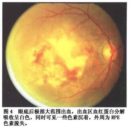 性亚洲色图_眼底无法检查,而对侧眼黄斑区有玻璃膜疣,色素紊乱或典型的干性amd
