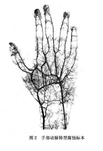 手部血管损伤