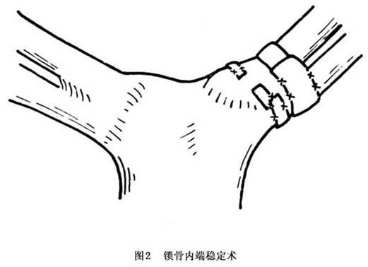 介绍手指简笔画