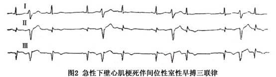 电路 电路图 电子 设计图 原理图 554_156