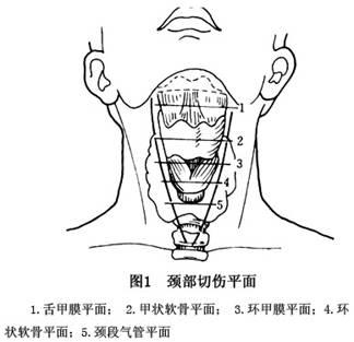 颈部二到三区图解