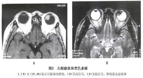 黑色素瘤早期囹�a_睫状体黑色素瘤