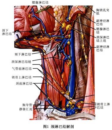 颈部淋巴结转移癌的疾病介绍 微医